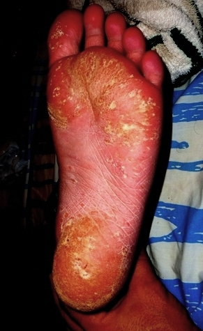 Stelara Clinical Trials Adverse Event, FDA, Psorisis,  Psoriatic athritis, Johnson & Johnson, Janssen Pharmaceuticas, Clinical Trials, Biologic, Failure, Drug Study, Drug Induced Psoriasis, Toxic, Stelara Causes Psoriasis, Stelara Causes Severe Psoriasis, US Senate, Feinstein, Adverse Effects