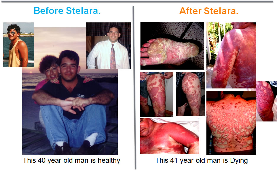 Stelara Side Effects, Stelara-Side-Effects, Clinical Trials, Stelara Adverse Event, Ustekinumab